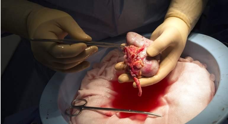 Cerdos genéticamente modificados podrían ser donantes de órganos