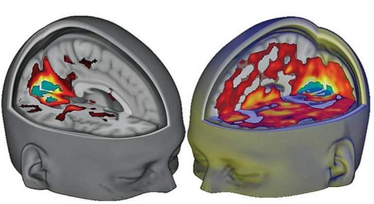 cerebro-lsd-Imperial-beckley-foundation.jpg