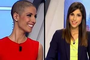 Una presentadora de la televisión de Murcia normaliza las secuelas del cáncer