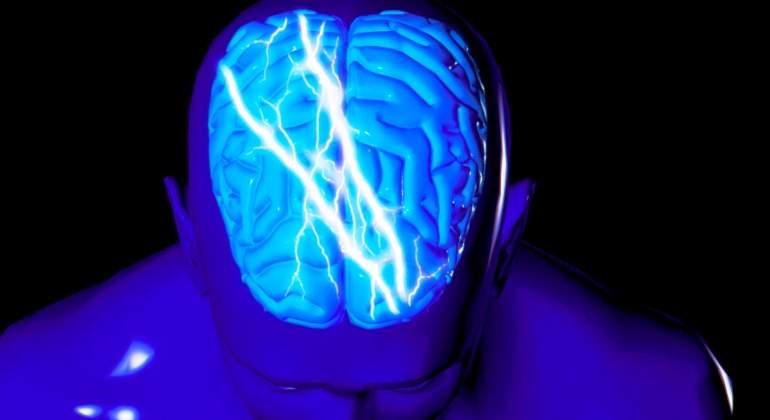 cerebro-epilepsia-getty.jpg