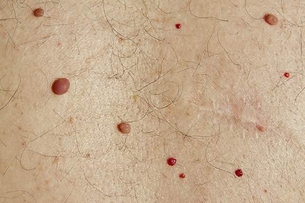 Lunares rojos en la piel