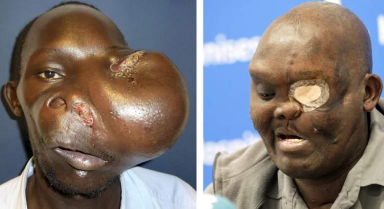 tumor-cavadas-kenya-cara-efe.jpg