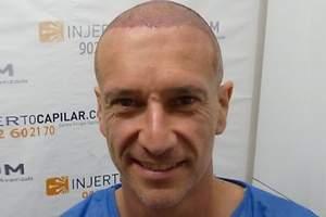El nuevo pelazo de Alfonso Pérez