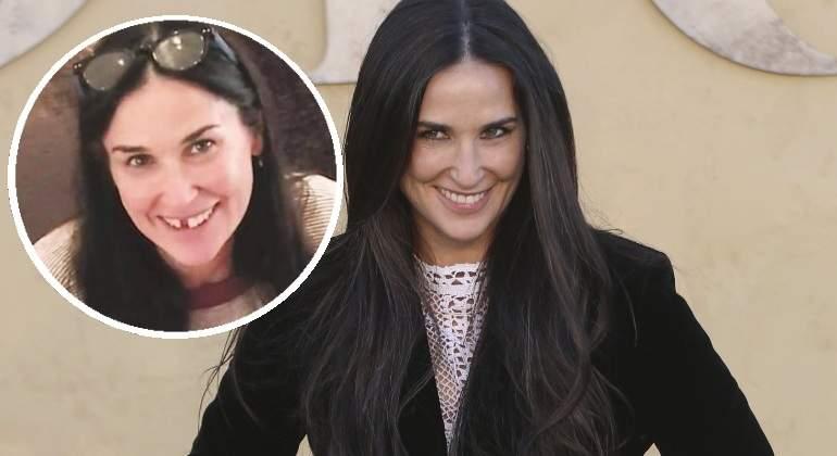 Por estrés, famosa actriz de Hollywood perdió dos dientes