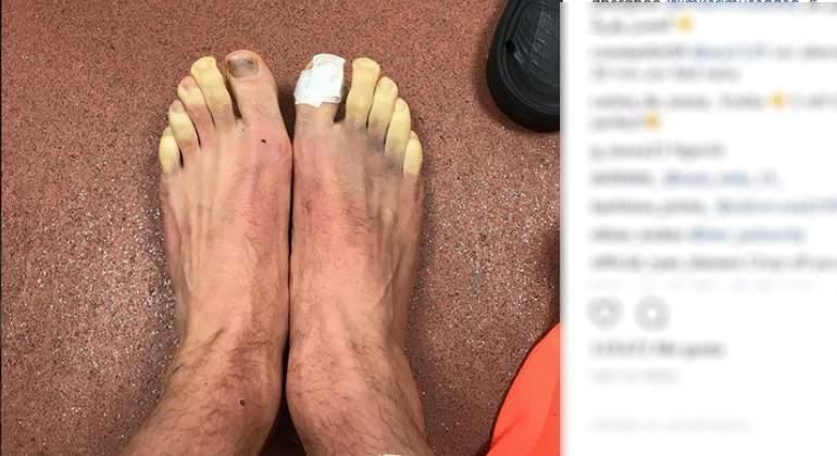 lallana-pies-congelados-instagram.jpg
