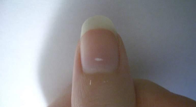 Las manchas blancas de las uñas no significan falta de calcio