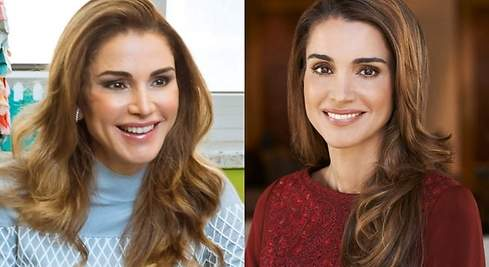 Rania de Jordania se pasa con el botox