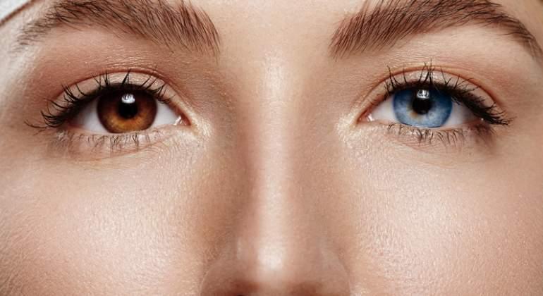 ojos-dos-colores-heterocromia-dreams.jpg