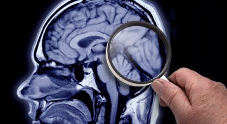lupa-cerebro-getty.jpg