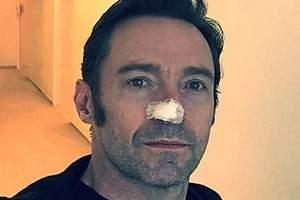 Hugh Jackman, operado de nuevo