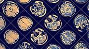 tomografia-cerebro-getty.jpg