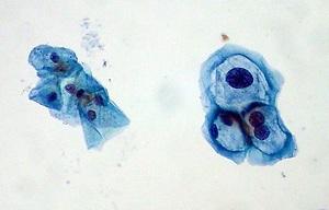Las infecciones por el genotipo 16 del virus del papiloma pueden plantear un riesgo variable de cáncer