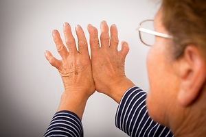 Identificados los primeros pasos de la artritis inflamatoria